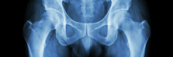 Film x-ray normal pelvis