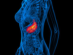 イーライリリーが胃がんの新薬・サイラムザを発売。同時にオンコロジーMRを募集