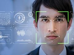 AIがMRの仕事を「守る」!? 人工知能を活用したディテール解析が進む