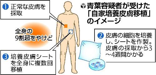 【京アニ放火事件】青葉容疑者、死亡率95%超だった 医師が明かす   治療にあたった医師の一人は「治療に力を尽くしたのは、被害者と真相解明のためだ