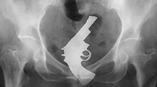 お尻に異物を入れた患者のレントゲン写真、たまにアルバムジャケットにしたいぐらいカッコイイ構図の奴があるから困る