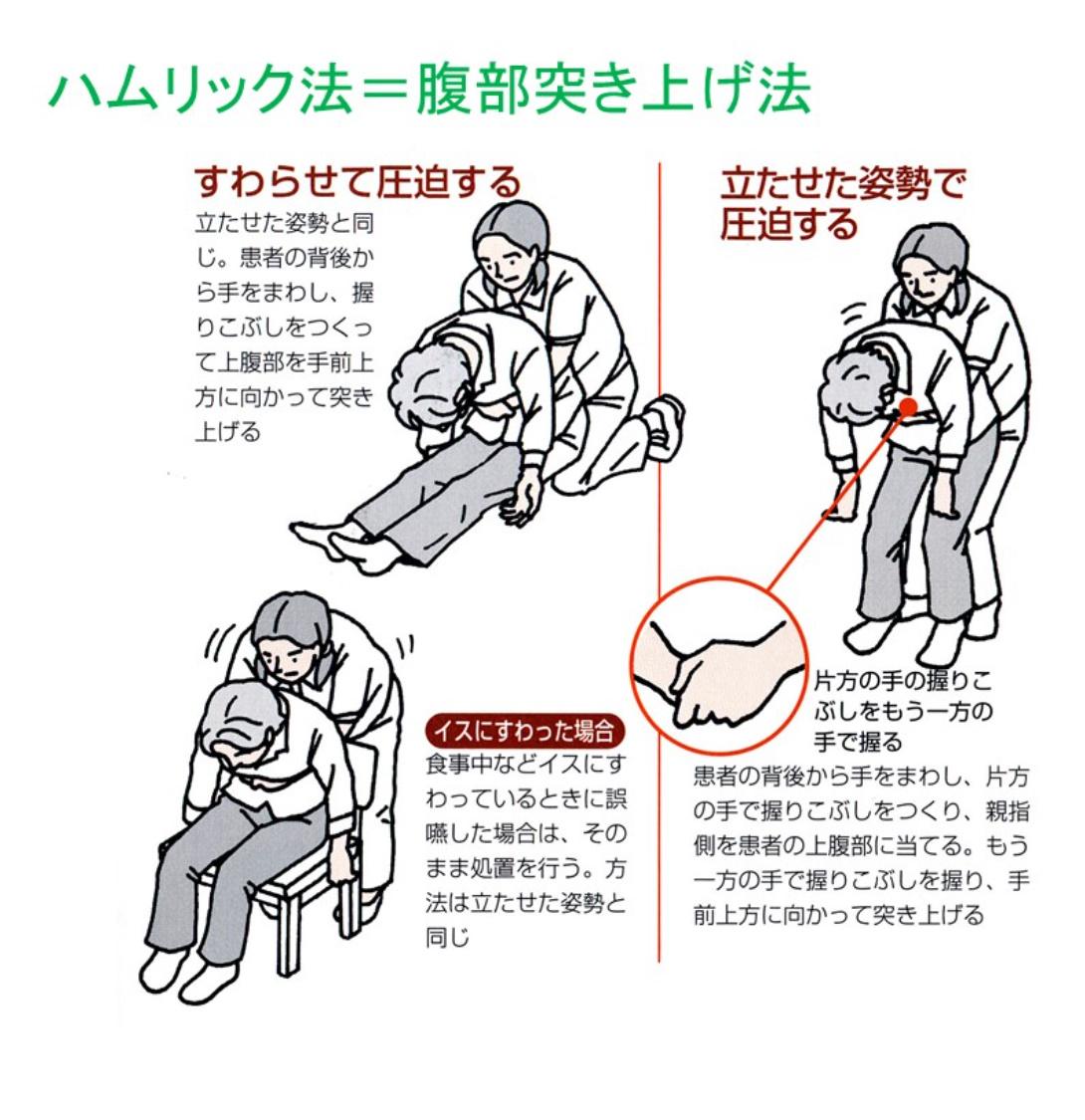 お正月だからこそ知っておきたい「腹部突き上げ法」と「背中叩打法」です