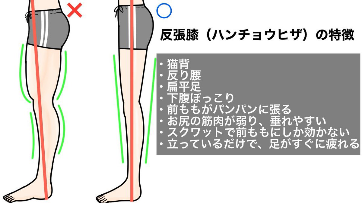 99%の反り腰の方に当てはまる、ひざがピンと伸びている「反張膝」の姿勢はマジで厄介