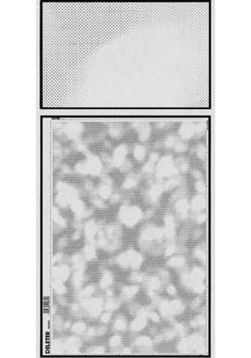デリーター スクリーン SE-592