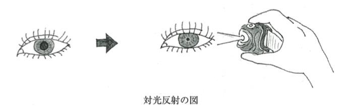 反射 睫毛 lash reflex中文翻譯,lash