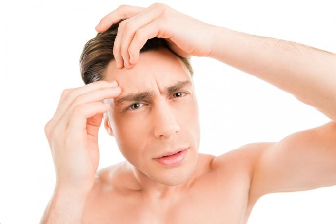 レーザー脱毛によって引き起こされる副作用である埋もれ毛