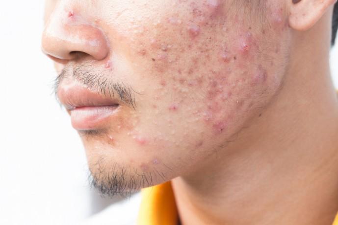 レーザー脱毛によって引き起こされる副作用である毛嚢炎