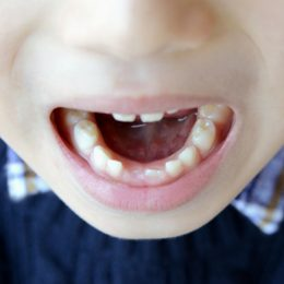 練習中や試合中に歯が抜けたら?