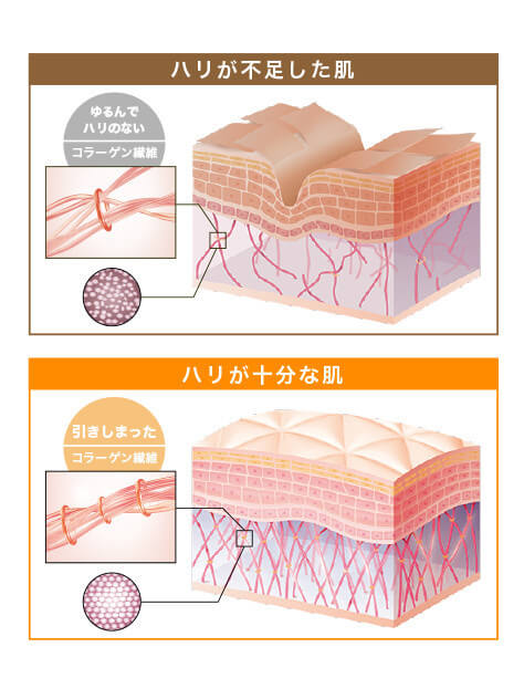 ハリが不足した肌=ゆるんでハリのないコラーゲン繊維 ハリが十分な肌=引きしまったコラーゲン繊維