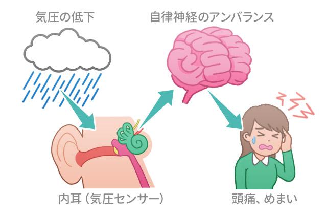天気痛気象病メカニズム原因対策
