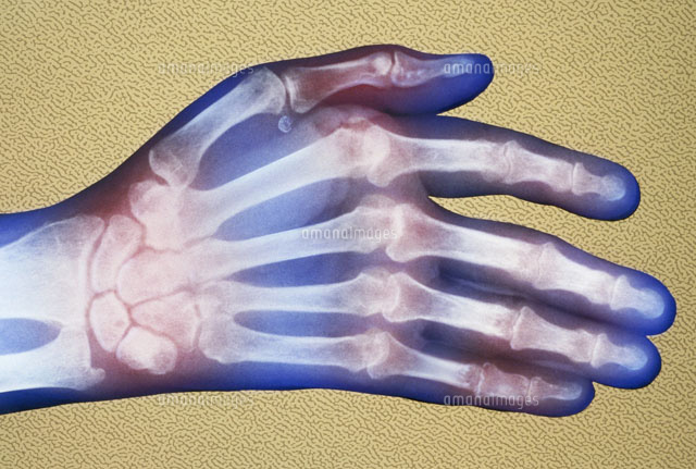 Rheumatoid arthritis