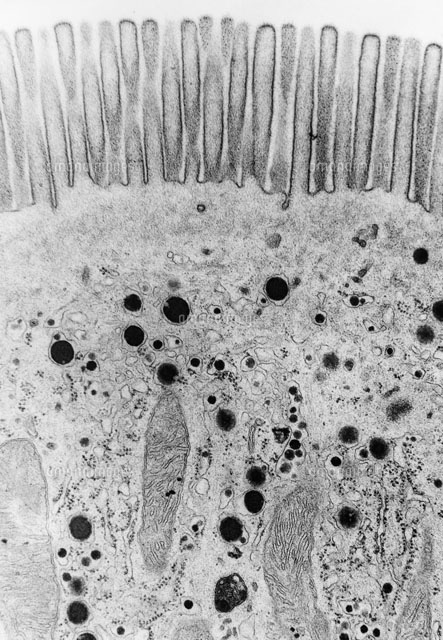 Intestinal Epithelial Cell