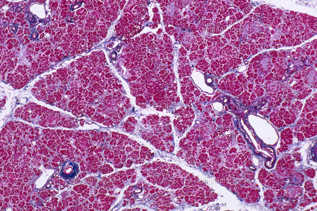 Pancreas With Diabetes