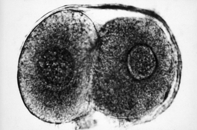 TEM of Zygote