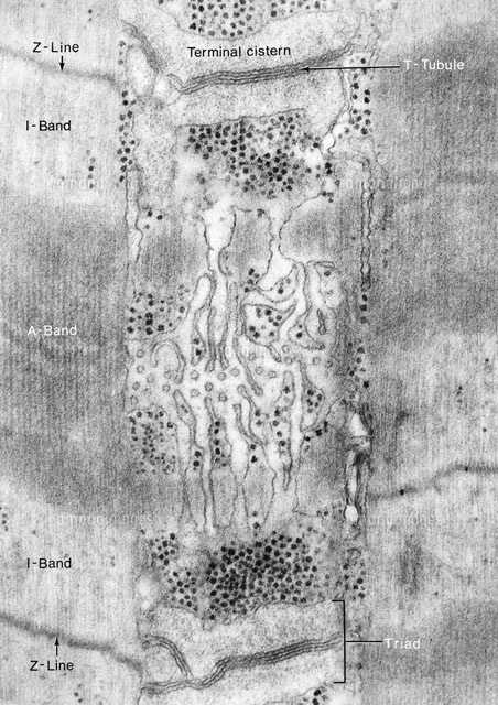 Sarcoplasmic Reticulum,TEM