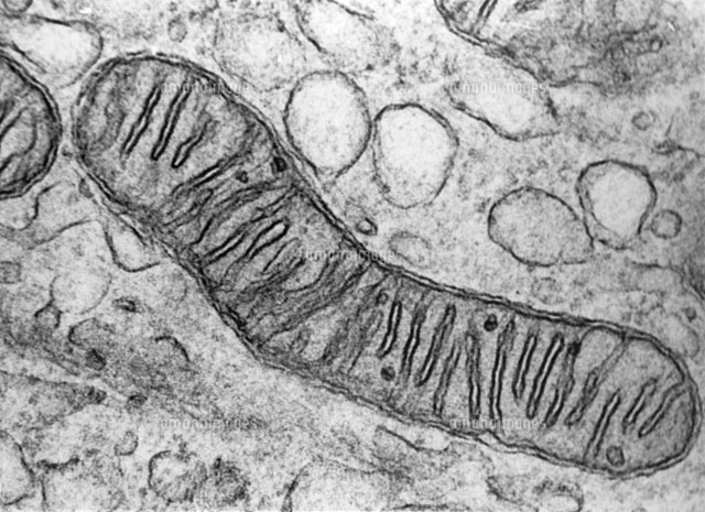 Mitochondrion Section,TEM