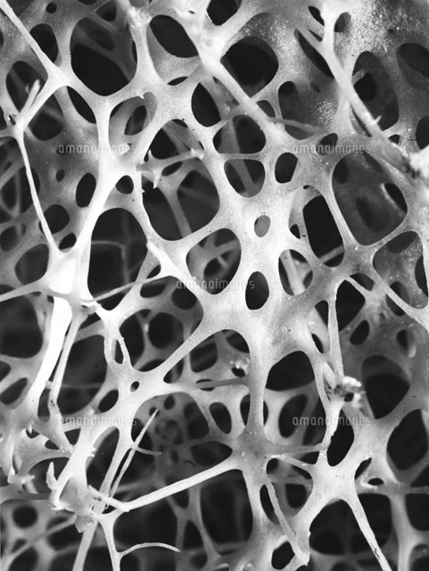SEM,Human shin bone