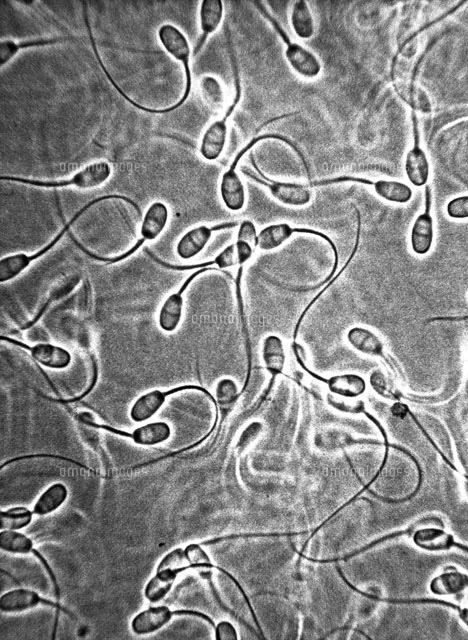 Rabbit Sperm