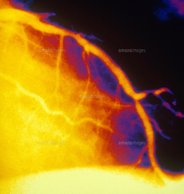 Angioplasty on Coronary Artery (3/3)