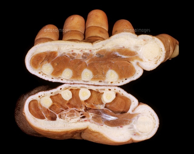 Right hand, transverse section