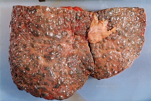 Cirrhosis, Human Liver