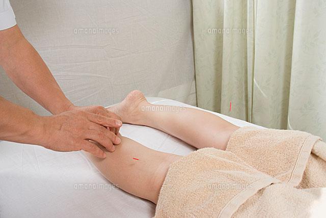 女性のふくらはぎに鍼を打つ11014021911の写真素材イラスト素材