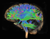 Diffusion MRI, also referred to as diffusion tensor imaging or DTI, of the human brain 11015256855| 写真素材・ストックフォト・画像・イラスト素材|アマナイメージズ