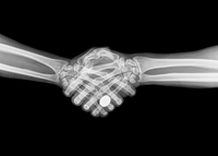 X-ray of two people shaking hands on black background 11015287674| 写真素材・ストックフォト・画像・イラスト素材|アマナイメージズ