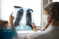 Young female doctor in front of window looking at hospital xray 11015344650| 写真素材・ストックフォト・画像・イラスト素材|アマナイメージズ
