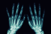 Close-up Of Medical X-ray Against Black Background 11115034048| 写真素材・ストックフォト・画像・イラスト素材|アマナイメージズ