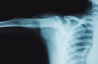 X-ray Image Of Broken Bone Against Black Background