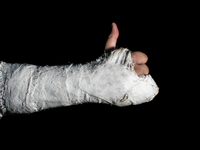 Cropped Image Of Fractured Hand Showing Thumbs Up Against Black Background