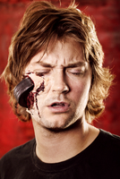 Tight head shot of man with hockey puck smashed into his skin. 20055027934| 写真素材・ストックフォト・画像・イラスト素材|アマナイメージズ