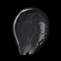 Thumb 015