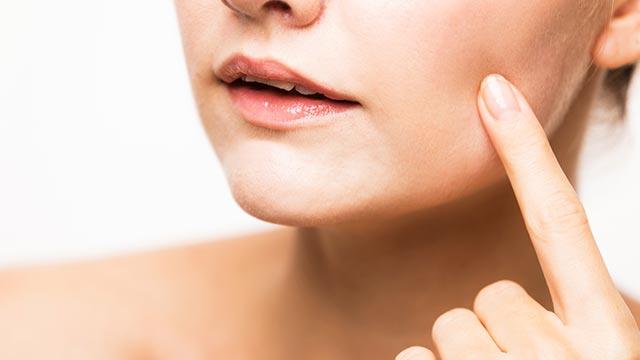 ニキビ・吹き出物がでやすい肌に!美肌を作るアロマ・ハーブ