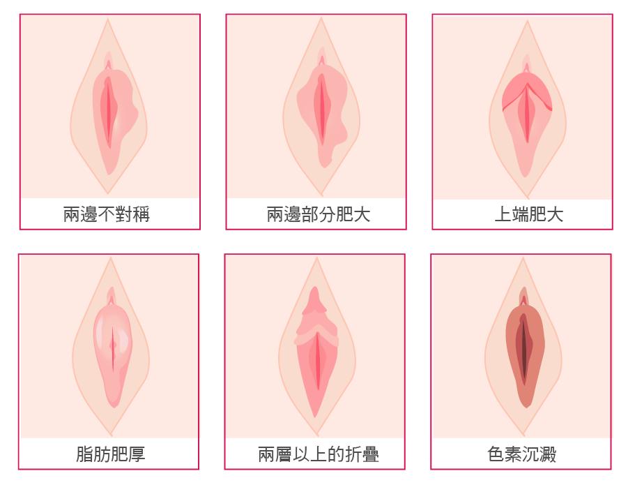 小陰唇手術-32.png