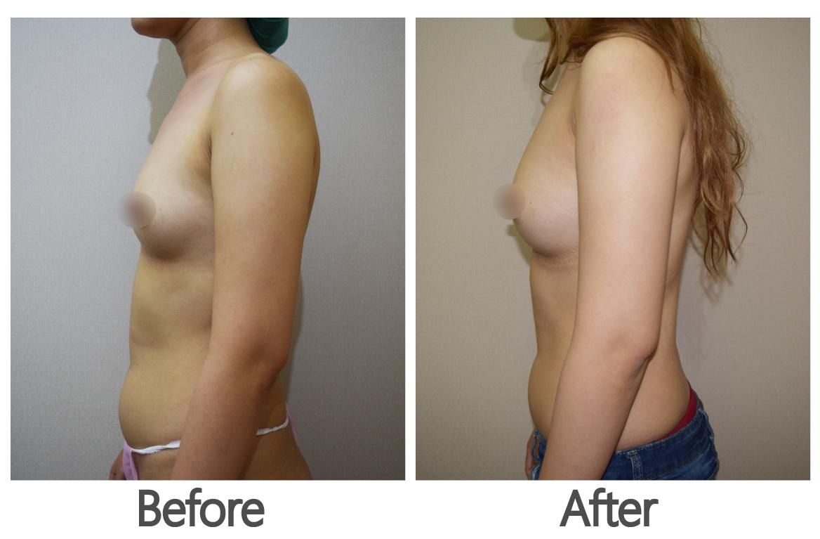 高雄自體脂肪隆乳,高雄醫美,高雄胸部整形,高雄自體脂肪補脂.png