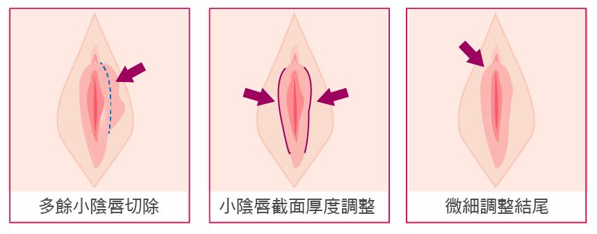 小陰唇手術-33.png