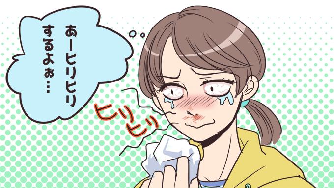 鼻をかみすぎて鼻の下が痛くなる