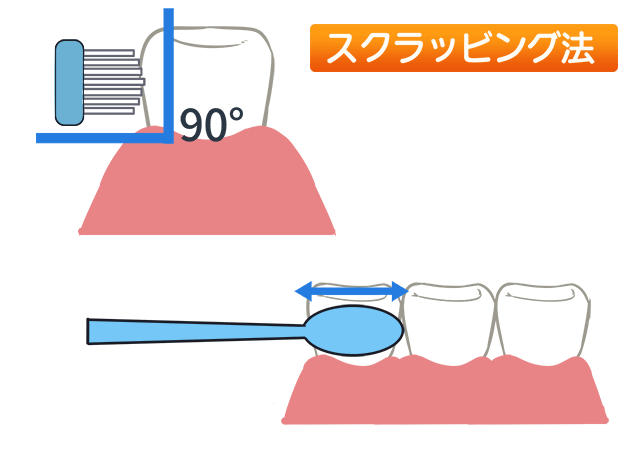 歯の磨き方 ①スクラッビング法