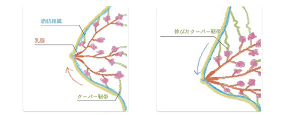 【amazon】8位 脇肉でバストアップ「ゆめふわブラ」_3