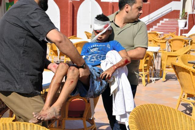 パレスチナ自治区ガザで、砲弾で負傷し運ばれる少年=16日午後4時16分、山尾有紀恵撮影