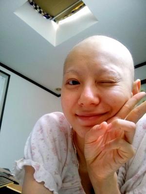 抗がん剤治療では、副作用ですべての髪が抜けた=2014年10月2日、所属事務所提供