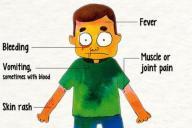 エボラ出血熱の症状(イラストの一部)