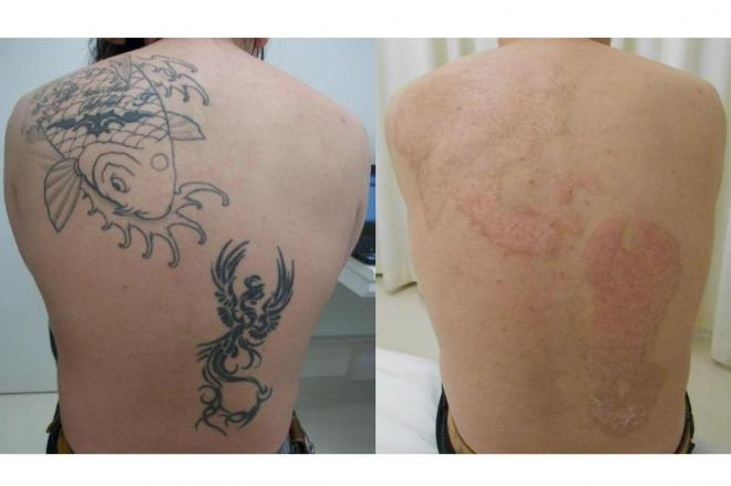 タトゥー除去治療を受けた患者の背中