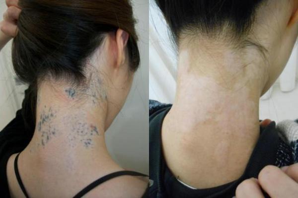 タトゥー除去治療を受けた患者(ほかの病院から転院)