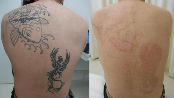 タトゥー除去治療を受けた患者