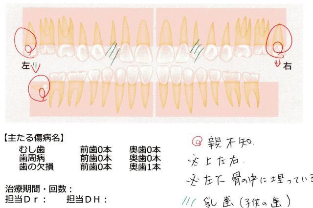 歯の診断図