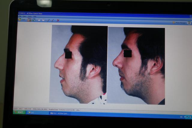 左が施術前、右が施術後を撮影した画像。盛り上がっていた鼻の頭が削られている