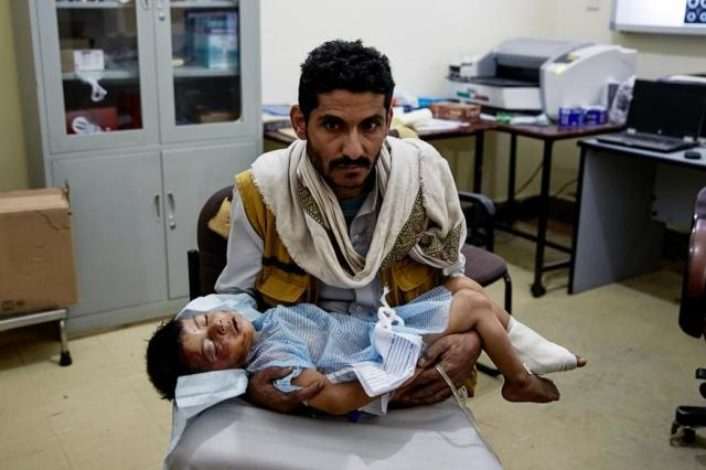 空爆でケガを負った子どもを抱える父親=イエメン
